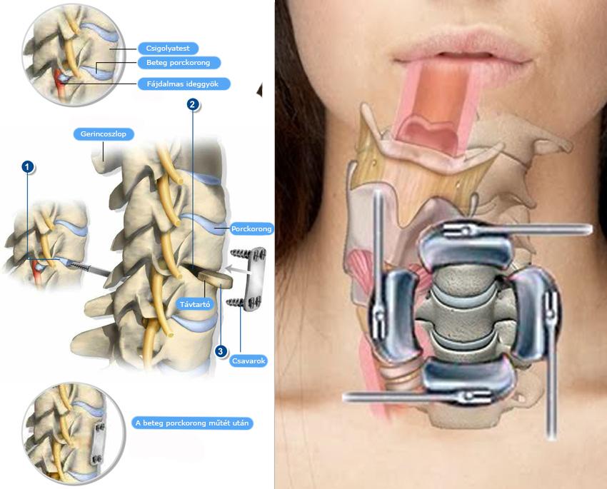 Nyaki meszesedés 3 oka, 3 tünete, 3 kezelési módja [teljes tájékoztató] - Nyaki sérv homályos látás
