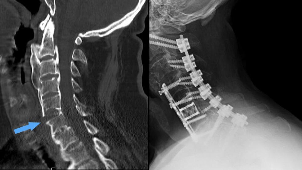 erekció a gerinc törésével