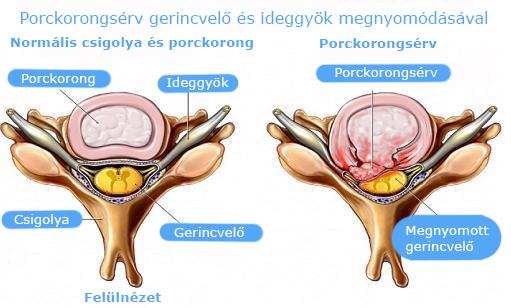 Nyaki gerincsérv és tünetei - Dr. ORMOS GÁBOR PhD