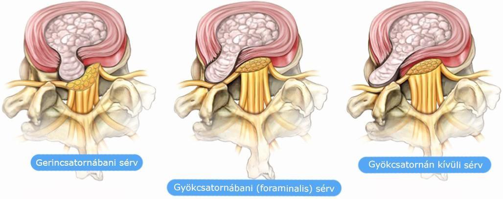 a térdízület 2 fokú artritisz kezelése kenőcs emlő osteochondrozishoz
